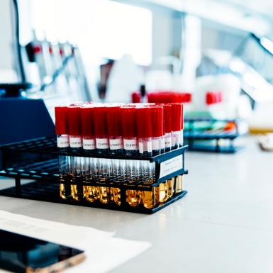Test tubes on a lab bench