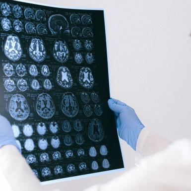 a doctor holds a sheet with brain scan images