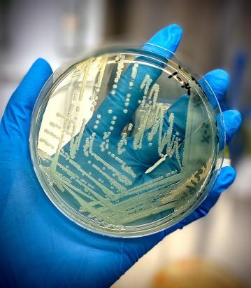A gloved hand holds up an agar plate teeming with Salmonella cells